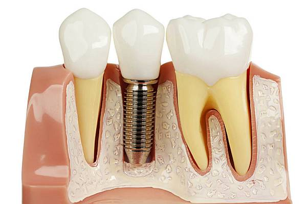 implantologie la clinica stomatologica German System Dent din Bucuresti