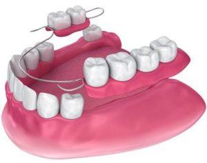 proteza dentară parțială