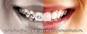 aparat dentar stomatologie