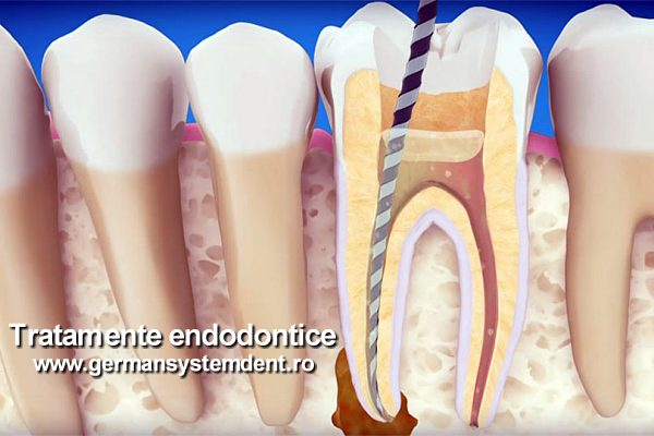 stomatologie endodontie