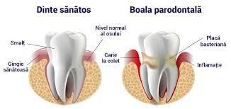 stomatologie parodontologie