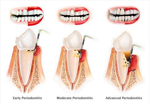 tratamente parodontologie