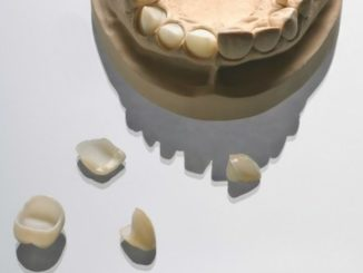 lucrari dentare provizorii