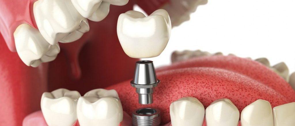 Implant dentar intr-o zi bucuresti