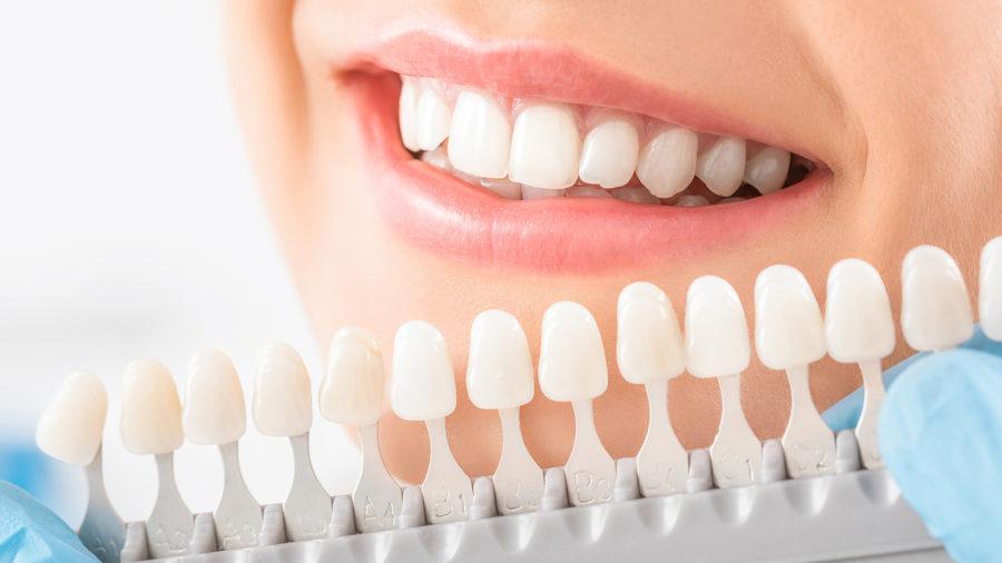 albire dentara in clinica stomatologica