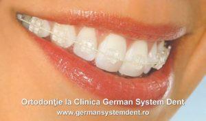 aparat dentar cu elemente transparente