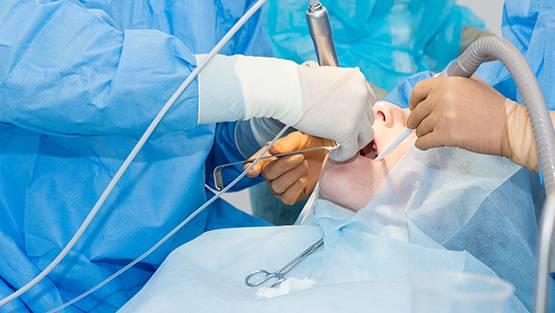 chirurgie stomatologica