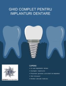 procedura de implant dentar - ghid