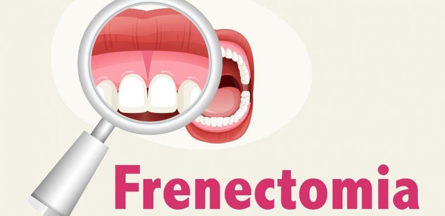 frenectomia stomatologie explicata