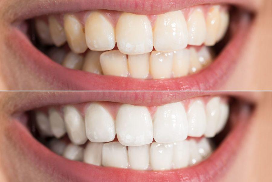 albire dentara profesionala