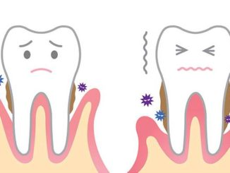 paradontologie stomatologie