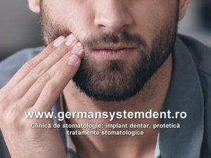 abces dentar tratamente stomatologice