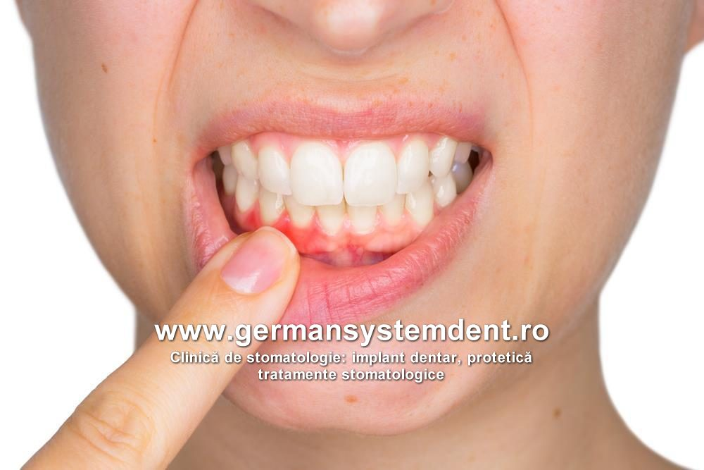 stomatologie abces dentar gingie