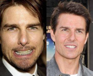 aparat dentar Tom Cruise