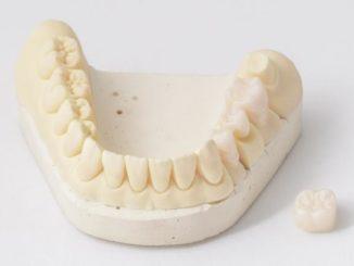 coroana dentara metalo-ceramica sau zirconiu