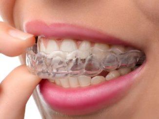 invisalign. aparat dentar invizibil