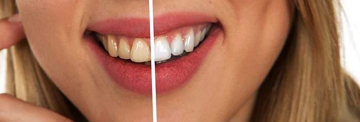 Stomatologia modernă poate face minuni! Vă crează un zâmbet, vă luminează fața, vă deschide ușile vieții. La fel ca în cazul lui Celine Dion...