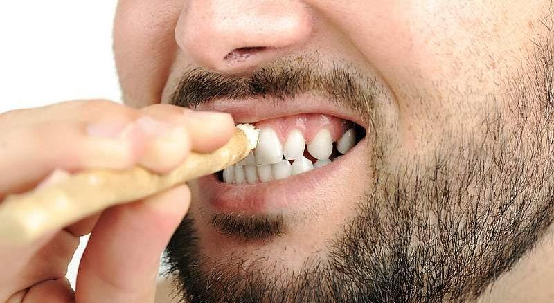 stomatologie albire dinti