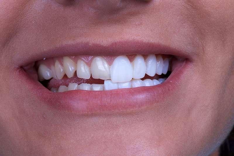 fatetare dinti veneer