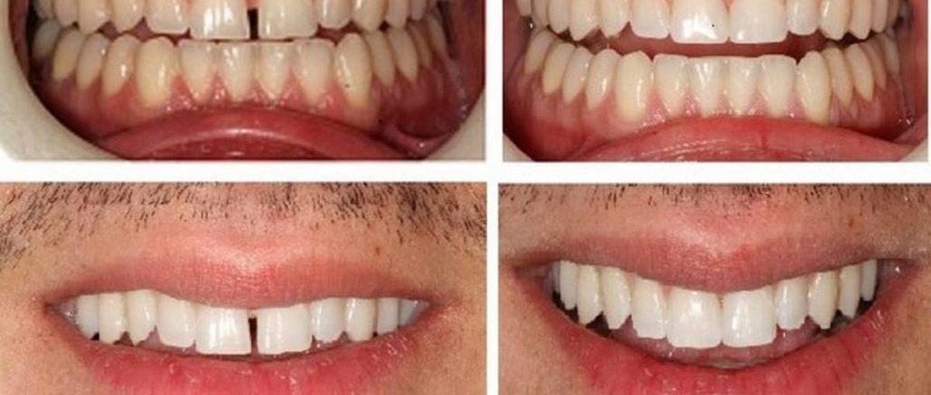 bonding dentar