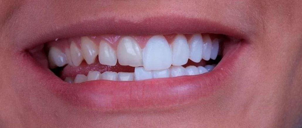 fatetare dinti
