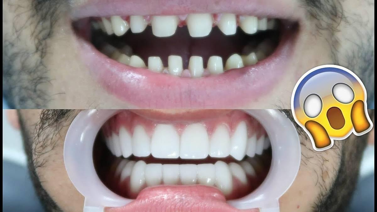 veneer teeth fatetarea dintilor