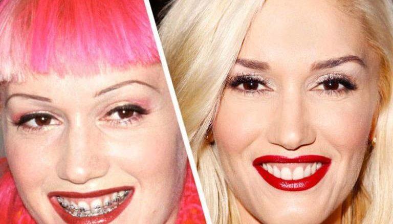 Gwen Stefani cu aparat dentar