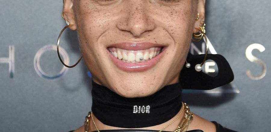 bijuterii dentare