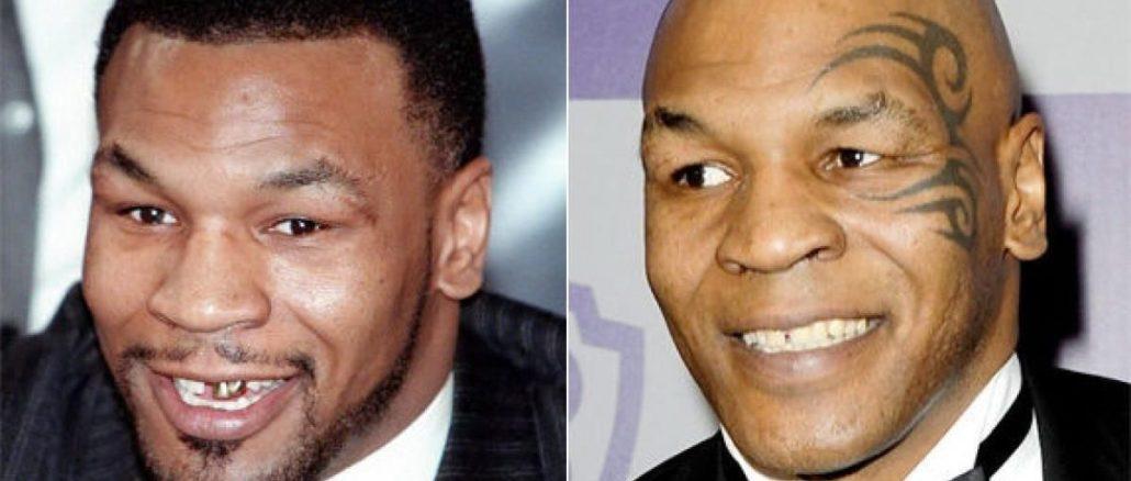 Dantura Mike Tyson inainte si dupa