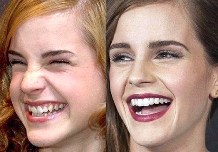 Emma Watson secretele unei danturi perfecte