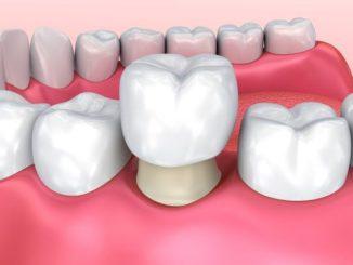Coroana dentara