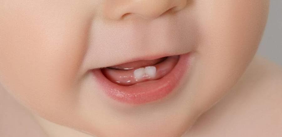 bebelus cu dinti natali
