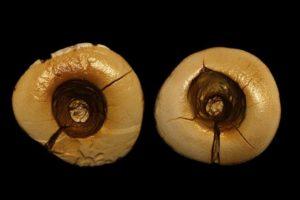 implant dentar sectiune