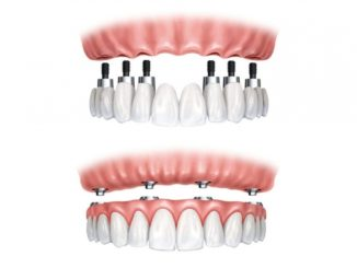Implant dentar bredent all-on-4