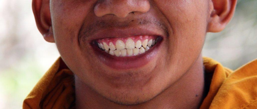 amprenta dentara