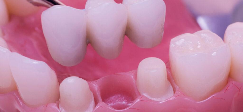 Slefuirea dintilor si montarea coroanelor dentare
