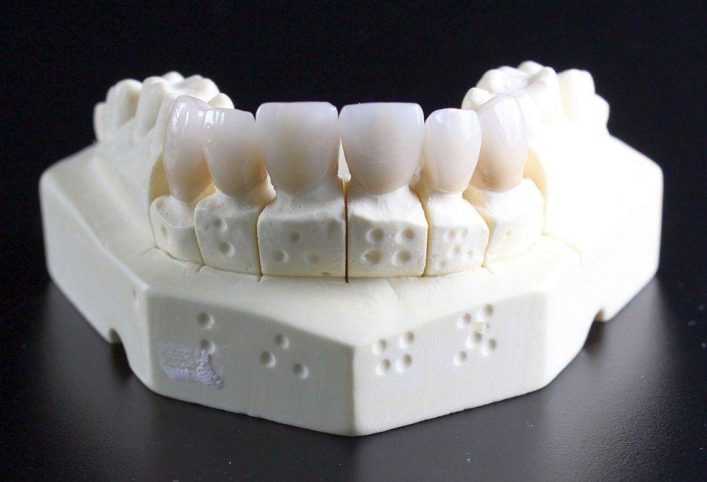 amprenta dentara clasica