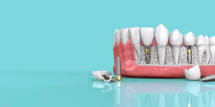 implant dentar si parti componente