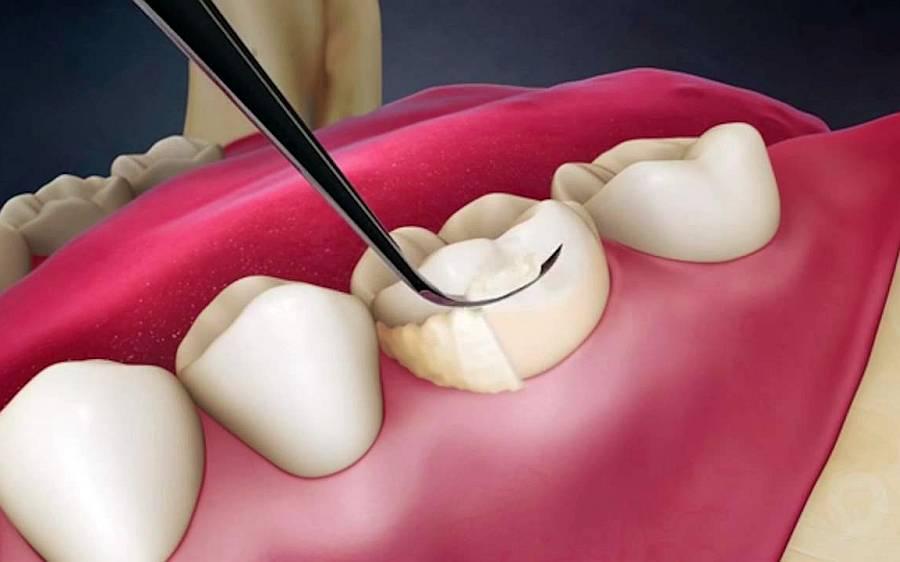 detartraj curatare dinti