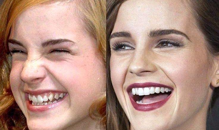 cosmetica dentara emma watson