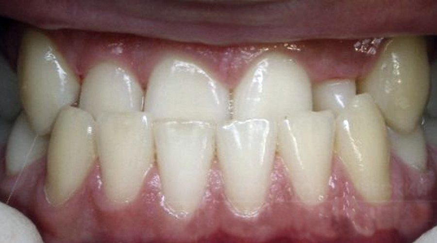 ocluzie dentara