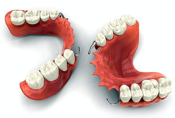 protetica dentara: proteze dentare moderne
