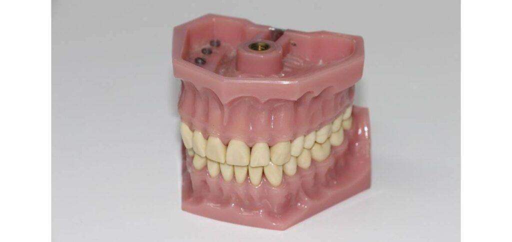 proteza dentara sau noua dantura