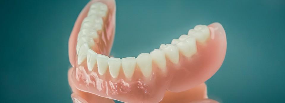 supraprotezarea pe implant