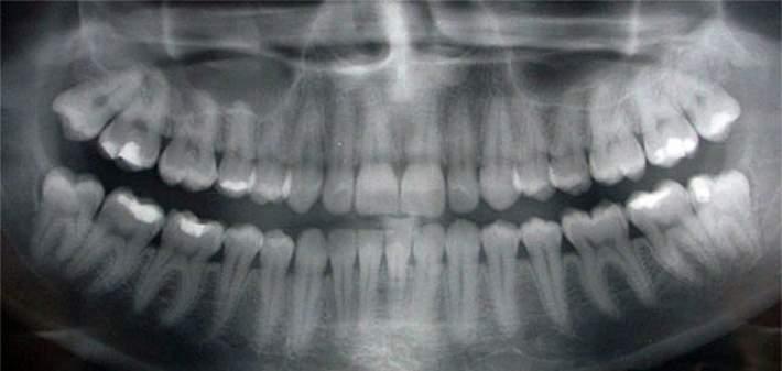 radiografie dentara panoramica