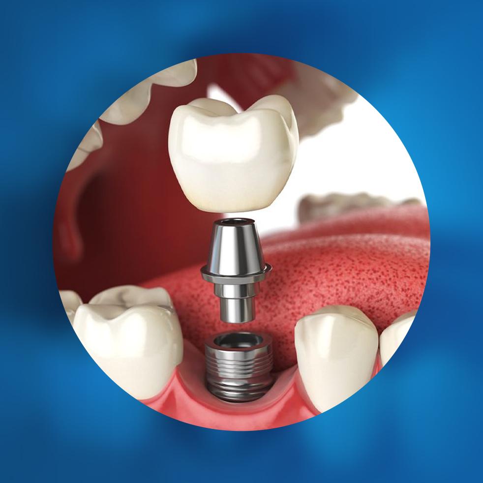 implantologie bucuresti