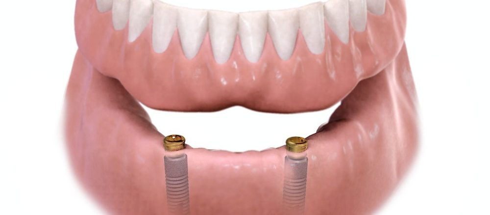 supra protezare pe implanturi